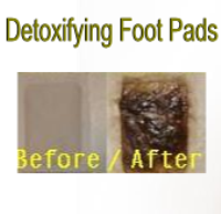 WFP Detox Foot Patches Packs-detox foot pads, japanese foot pads, detox foot patches, detoxifying foot pads, detoxification foot pads, detox patches for feet, foot pads, detox pads, kinoki pads, kinoki foot patches